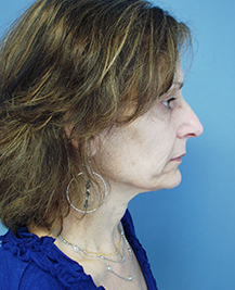 woman right side of face before surgery