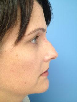 Other Nasal Procedures