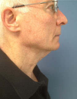 Direct Excision Neck Lift