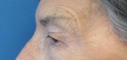 Eyelid Ptosis