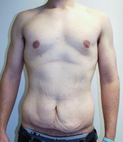 Male Abdominoplasty/Body Lift